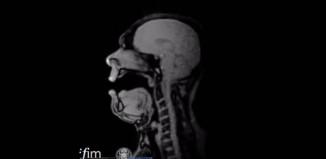 baritone Michael Volle inside an MRI
